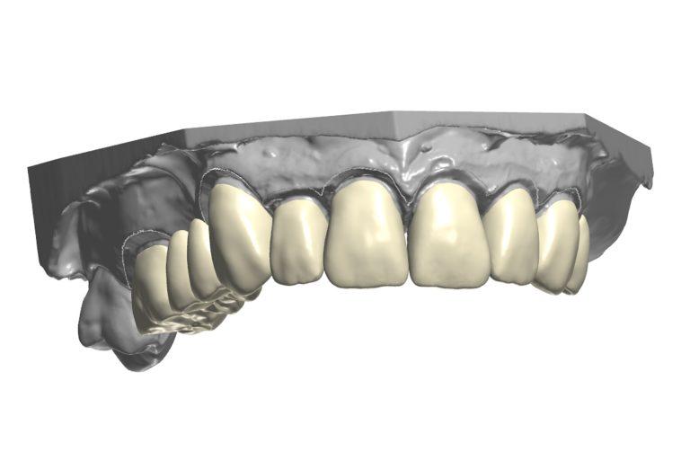 Green Dental Lab - Laborator tehnica dentara - Restaurari protetice - Tehnicieni dentari, Coroane dentare, zirconiu, proteze totale 4