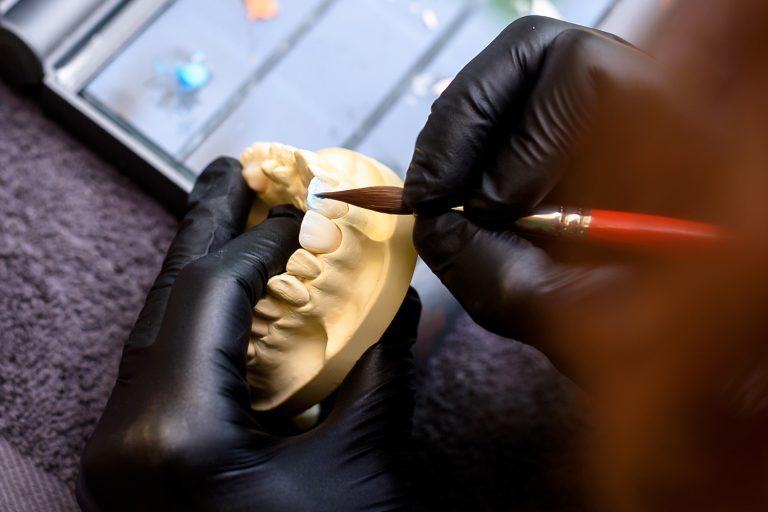 Servicii tehnica dentara - laborator tehnicieni dentari - Green Dental Lab Timisoara