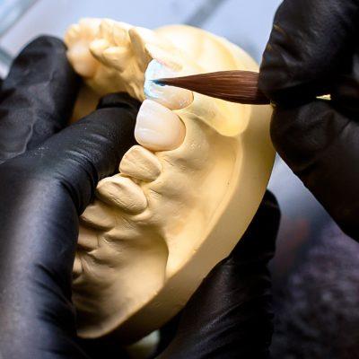 Laborator tehnica dentara - Green Dental Lab - Timisoara
