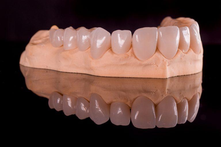 Laborator tehnica dentara Timisoara - Green Dental Lab - Restaurari protetice - coroane zirconiu - tehnicieni dentari