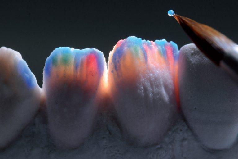 Restaurari Protetice Fixe - Laborator tehnica dentara Timisoara - Green Dental Lab