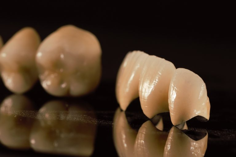 Restaurari protetice fixe - Green Dental Lab - Timisoara Laborator tehnica Dentara - 2