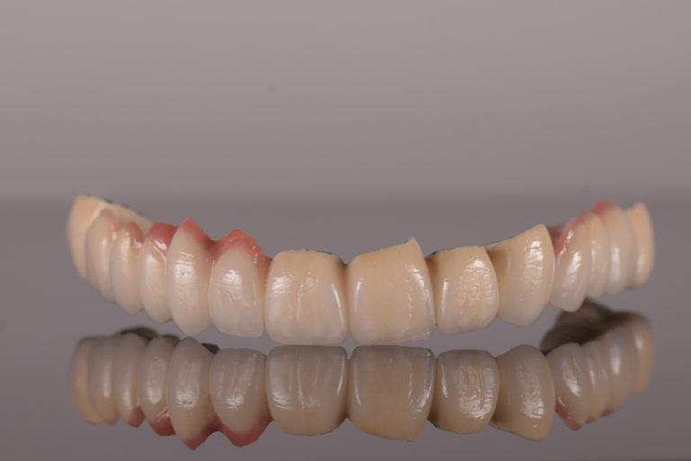 Restaurari protetice fixe - Green Dental Lab - Timisoara Laborator tehnica Dentara 3