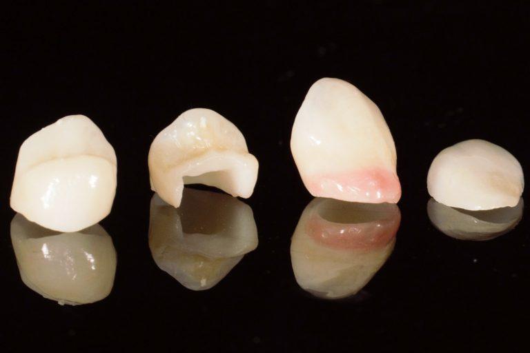 Restaurari protetice fixe - Green Dental Lab - Timisoara Laborator tehnica Dentara