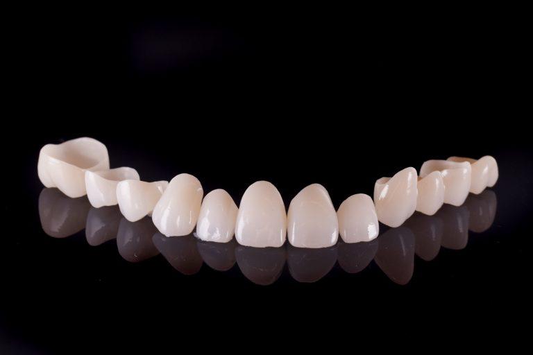 Restaurari protetice fixe - Green Dental Lab - Timisoara Laborator tehnica Dentara - Zirconiu Coroane dentare - Lagorator