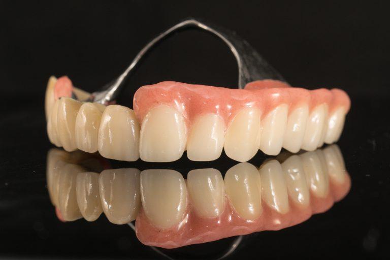 Restaurari protetice mobile - mobilizabile - scheletate - Green Dental Lab - Laborator tehnica dentara Timisoara