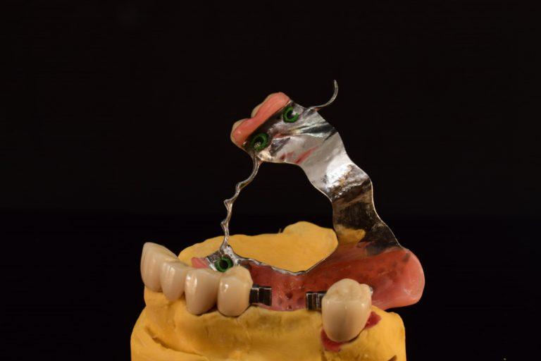 Restaurari protetice mobile - mobilizabile - scheletate - Green Dental Lab - Laborator tehnica dentara Timisoara 4