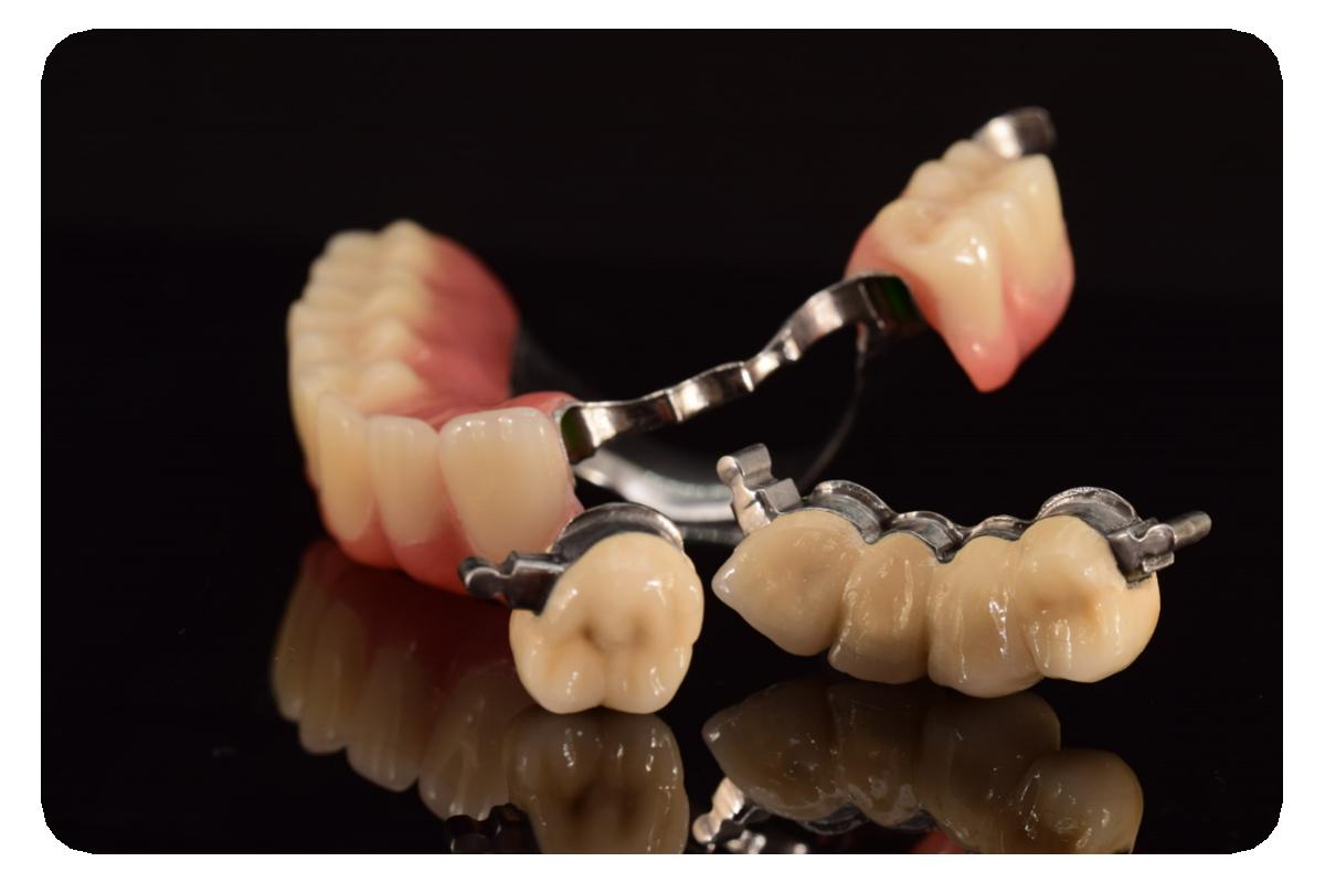 Restaurari protetice mobilizate - Laborator tehnica dentara Green Dental Lab